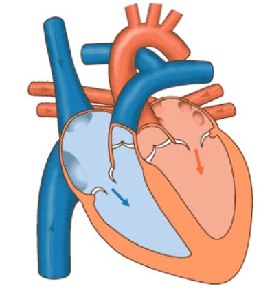 Das Blut fließt nun ohne Zwischenspeicherung direkt in die Herzkammer durch
