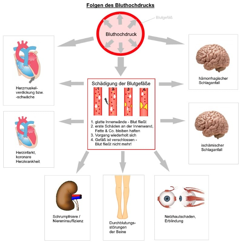 Bluthochdruck Folgen und Schäden