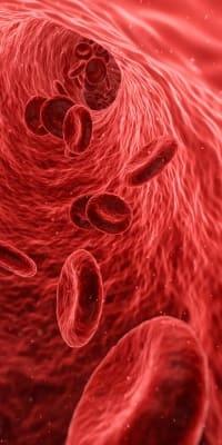 niedriger Blutdruck - Wo ist das Blut hin